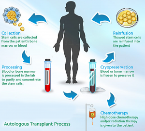 stemcelltransplant-graphic